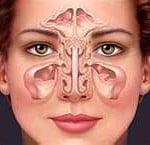 Sinusite uma visão geral